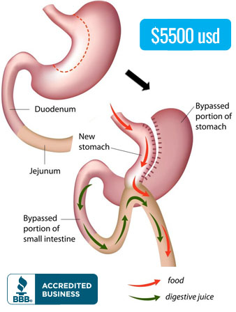 Mini Gastric Bypass in Tijuana, Mexico
